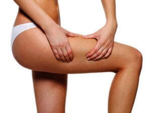 Vela Shape - Лечение целлюлита